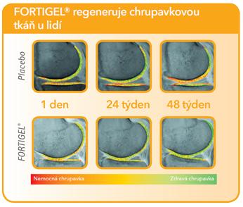 Startes® Hydrolyzovaný Kolagen FORTIGEL® Klouby a chrupavky 201G - regeneruje chrupavkovou tkáň u lidí