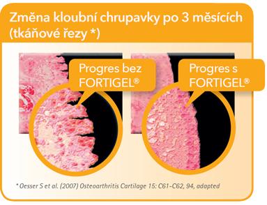 Startes® Hydrolyzovaný Kolagen FORTIGEL® Klouby a chrupavky 201G - regeneruje chrupavkovou tkáň u lidí - změna po 3 měsicích
